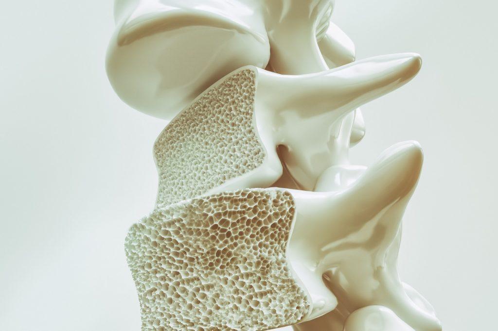 Fakty i mity na temat osteoporozy