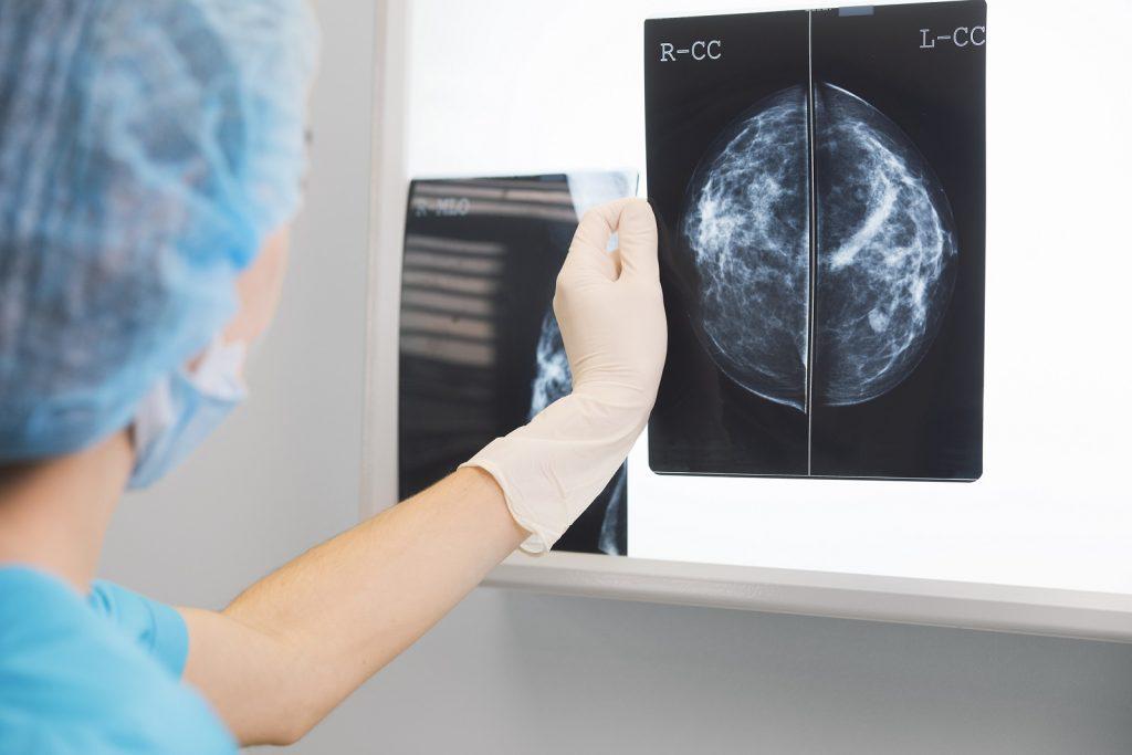 Mammografia w profilaktyce raka piersi