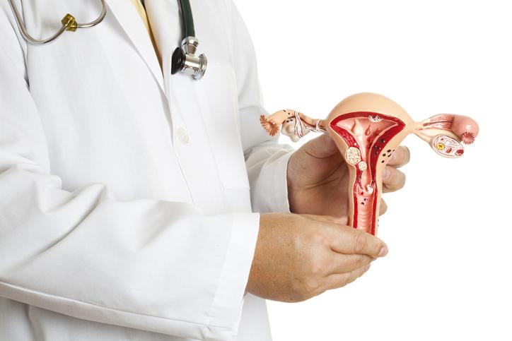 Mięśniaki macicy i przyczyny ich powstawania